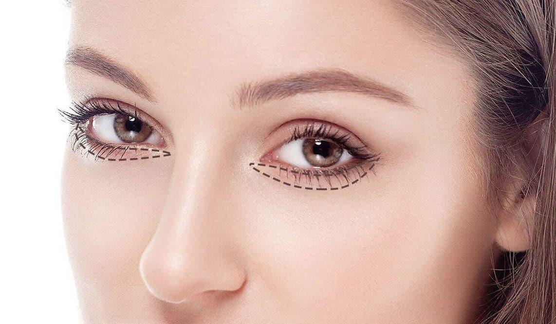 Blepharoplastie Tunisie - Chirurgie esthétique des paupières