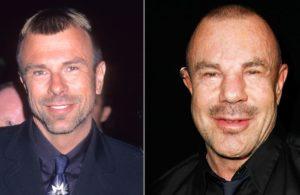 Thierry Mugler chirurgie esthétique : Photo avant/après