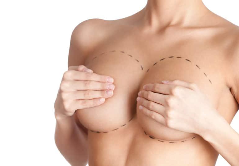 Augmentation mammaire par protheses - Lipofilling mammaire