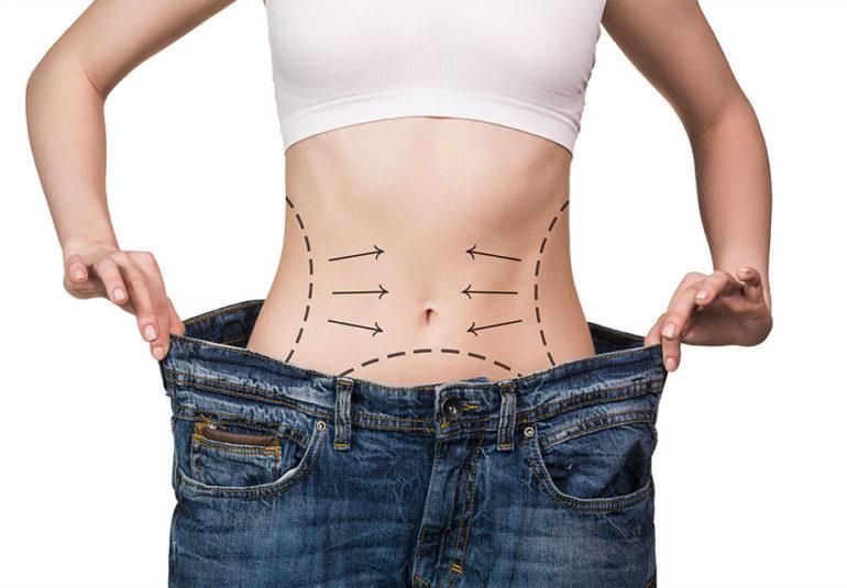 Chirurgie de l'obésité - Chirurgie bariatrique