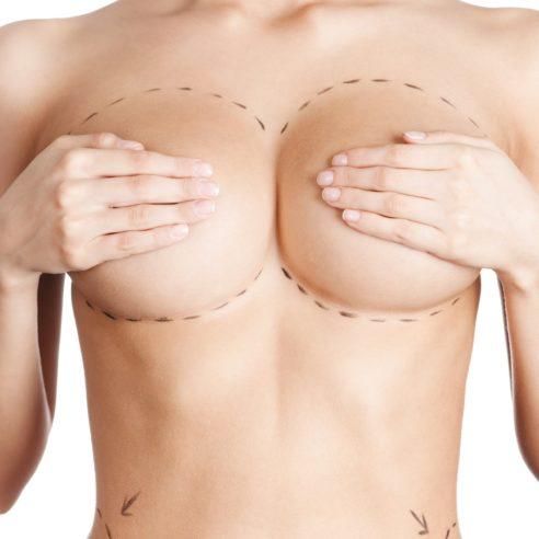 Augmentation mammaire par prothèses rondes