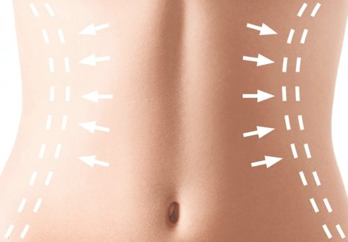 Abdominoplastie Tunisie - chirurgie esthétique du ventre