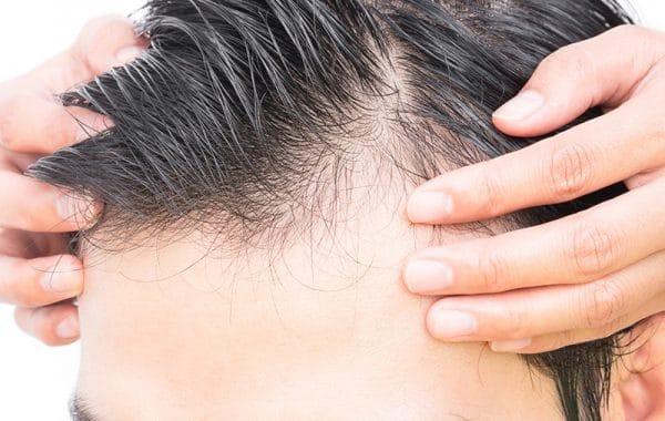 Greffe de cheveux Tunisie - Chirurgie Homme Tunisie