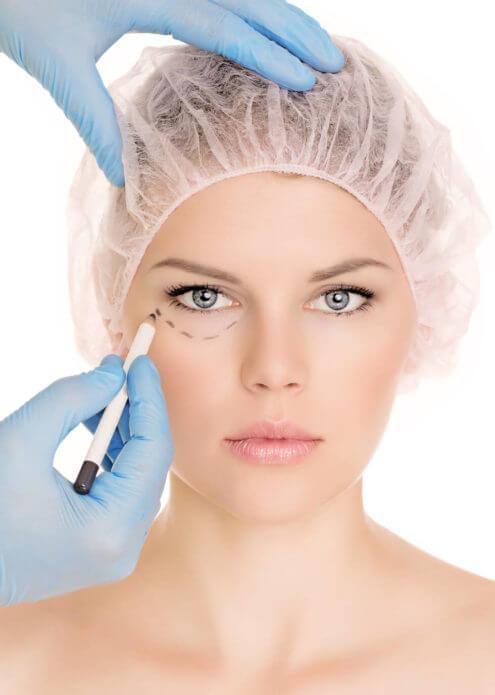 Blepharoplastie - La chirurgie des paupières