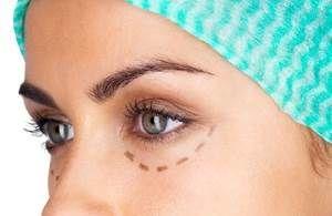Blépharoplastie Tunisie - Chirurgie Visage Tunisie