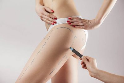 Lifting cuisses Tunisie - chirurgie réparatrice des cuisses