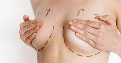 Lifting mammaire Tunisie - Chirurgie mammaire Tunisie
