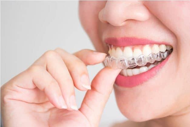 Blanchiment des dents par gouttière individualisée
