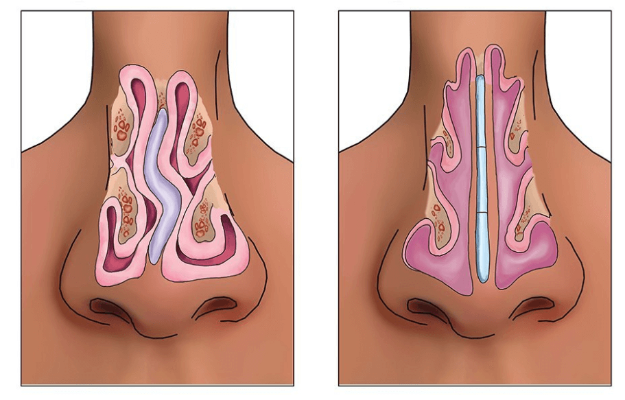 Septoplastie Tunisie - Chirurgie cloison nasale déviée