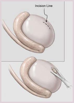 biopsie testiculaire - traitement de l'infertilité