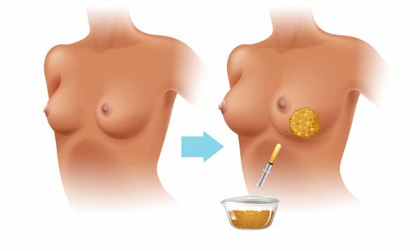 Lipofilling seins Tunisie - Lipofilling mammaire Tunisie