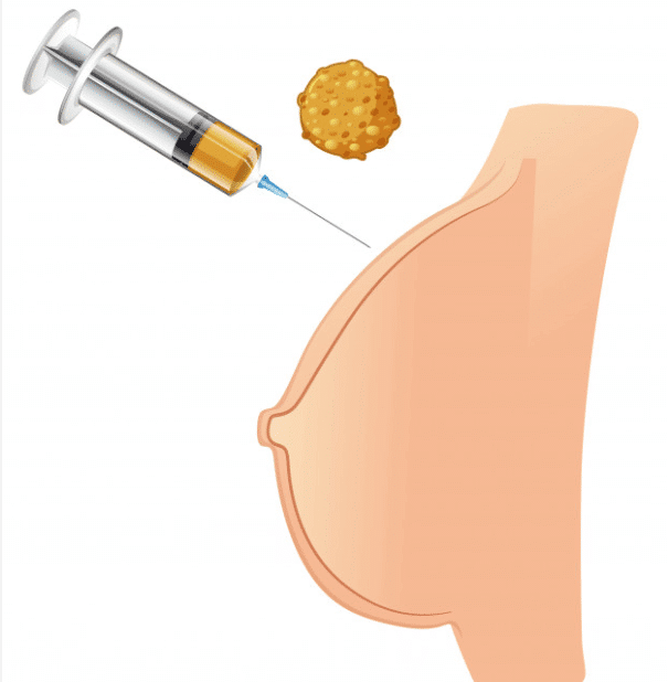 lipofilling sein Tunisie - chirurgie mammaire