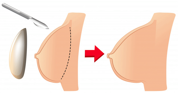 Pose prothese mammaire - Augmentation Mammaire Tunisie