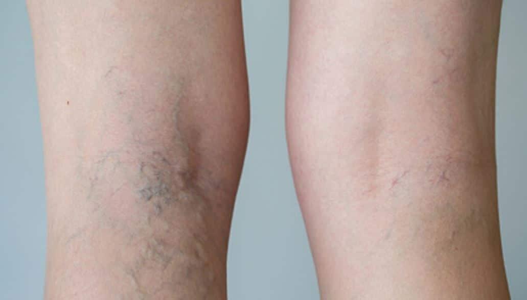 Laser vasculaire Tunisie - Traitement des varices