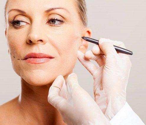 Lifting visage - Lifting Cervico facial