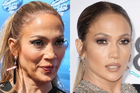 Jennifer Lopez lifting du visage