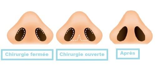 Types de rhinoplastie Tunisie