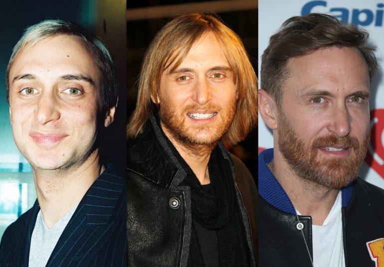 David Guetta chirurgie esthétique