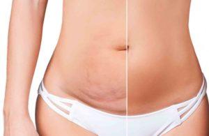 Reprise d'une abdominoplastie ratée